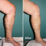 vein treatment west florida vein center