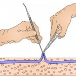 Microphlebectomy
