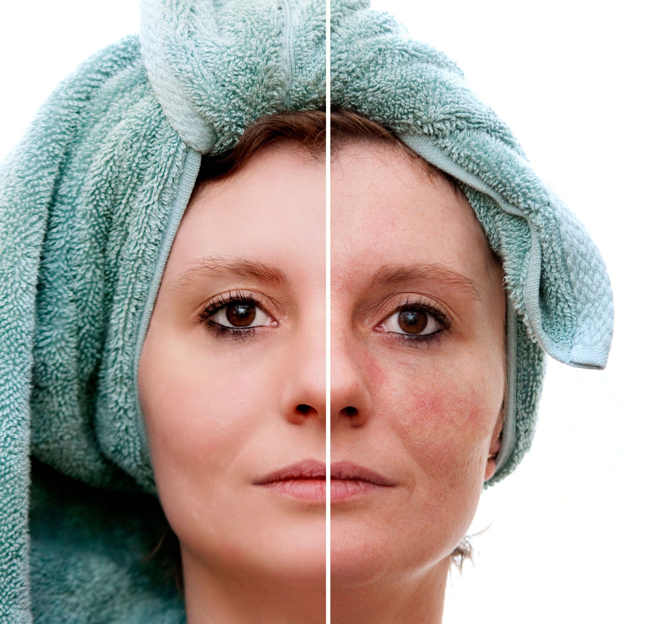 facial spider veins dr mark zuzga
