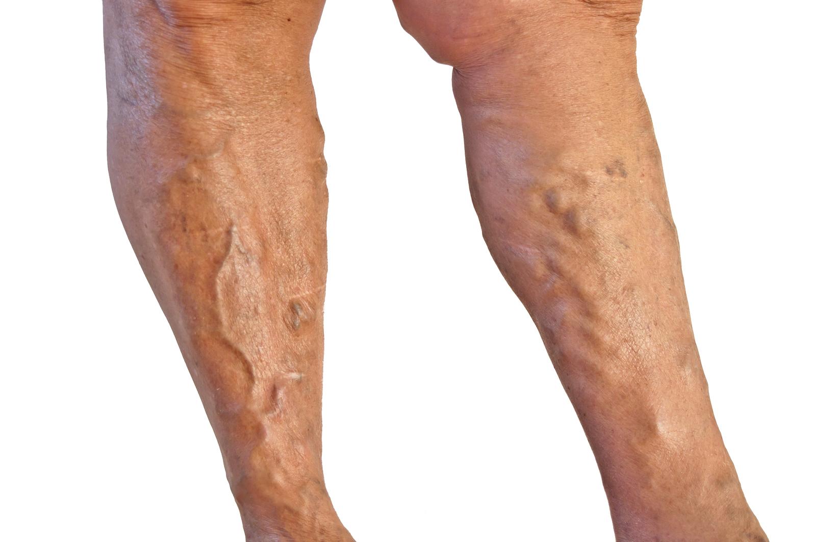 image of varicose veins