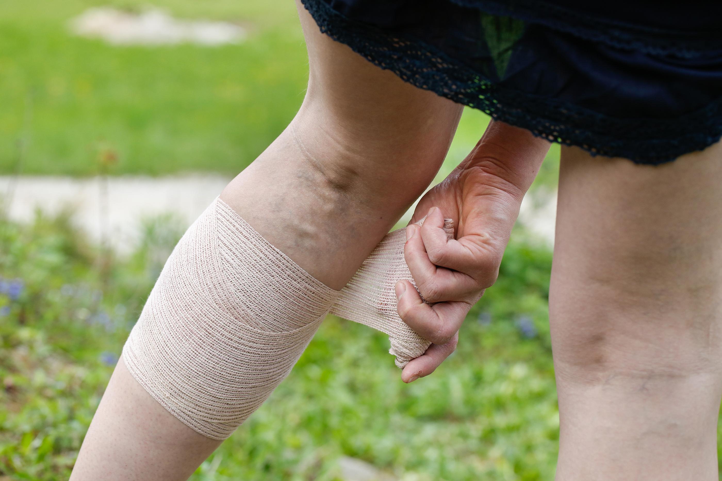 swelling legs