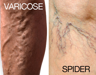Image result for Varicose Veins and Spider Veins