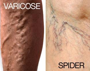 varicose veins and spider veins