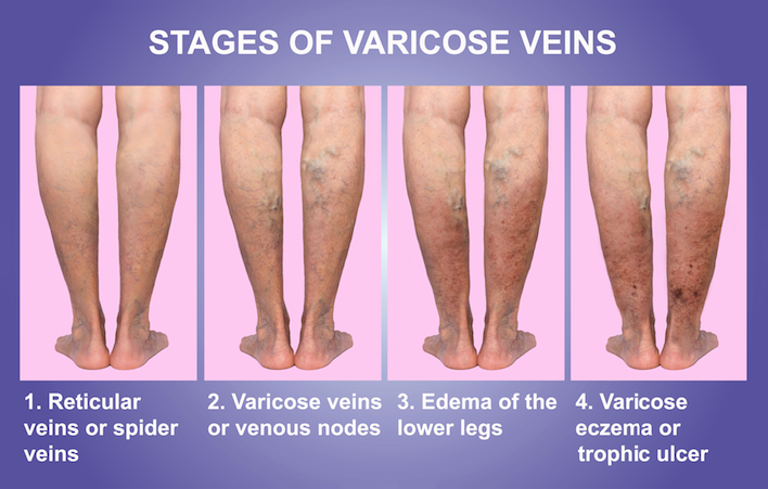 varicose veins and thrombosis