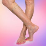 Spider veins west florida vein
