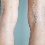 varicose veins west florida vein center safety harbor tampa florida