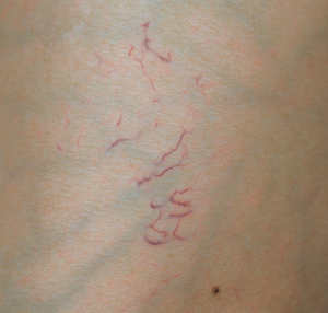 spider veins west florida vein center