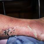 Leg Ulcer Florida