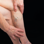 varicose veins tampa west florida vein center