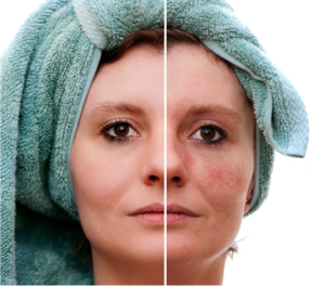 spider veins facial dr. mark zuzga