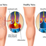 vein-tampa-microphlebectomy
