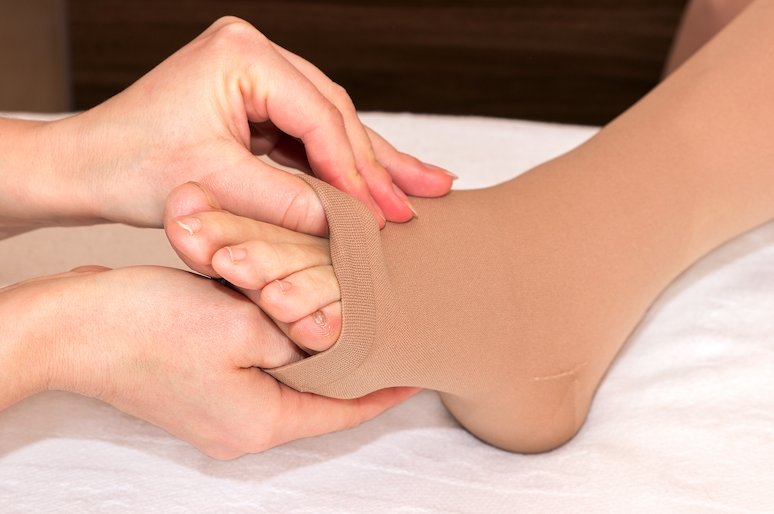 compression stockings west florida vein center
