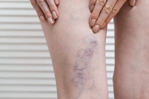 varicose veins at any age west florida vein center