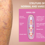 varicose veins west florida vein center dr. mark zuzga