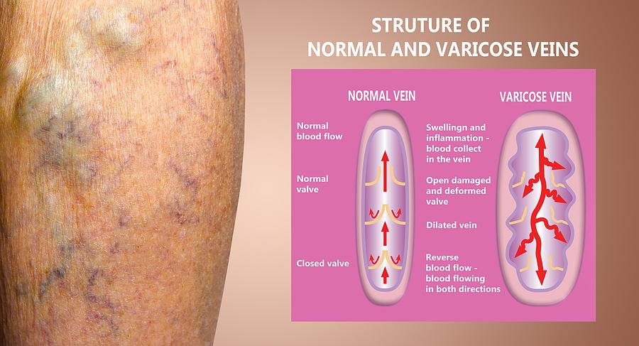 varicose veins west florida vein center dr. mark zuzga