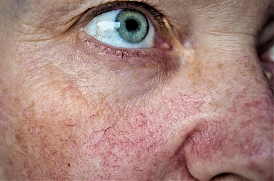 facial veins west florida vein center