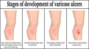 Venous stasis ulcers west florida vein center