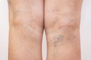 sclerotherapy vein treatment west florida vein center