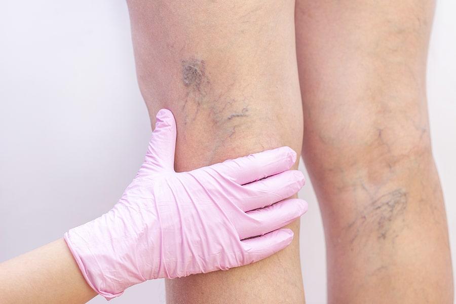 varicose veins west florida vein center ablation