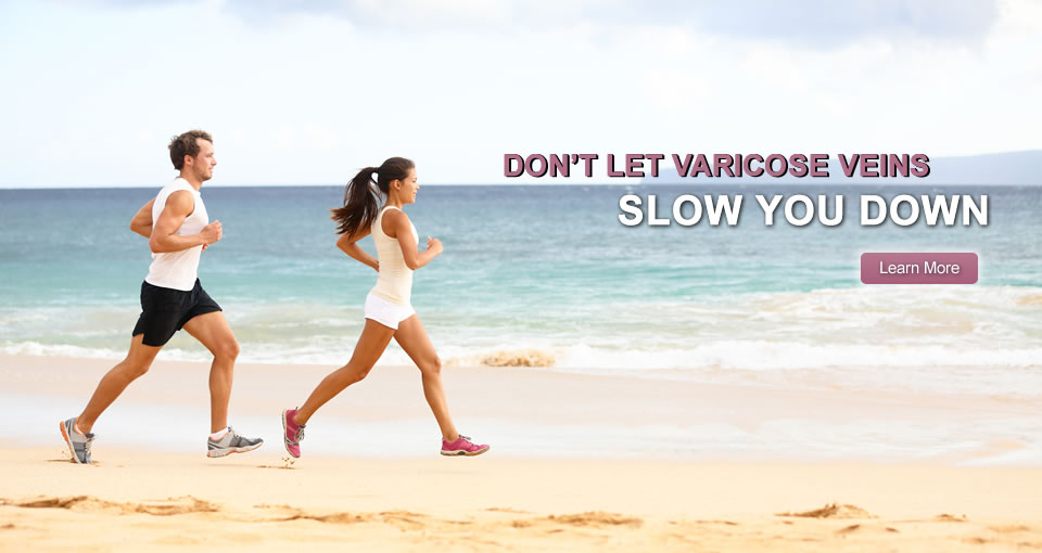 Get Control Of Your Varicose Veins