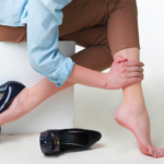 sclerotherapy tampa