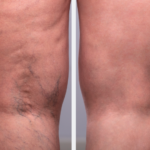 microphlebectomy west florida vein center