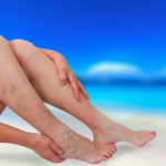 varicose veins west florida vein center