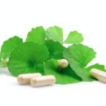 varicose veins natural remedies