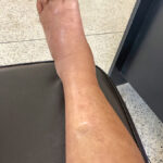Edema west florida vein center varicose veins