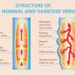 Venous reflux disease west florida vein center