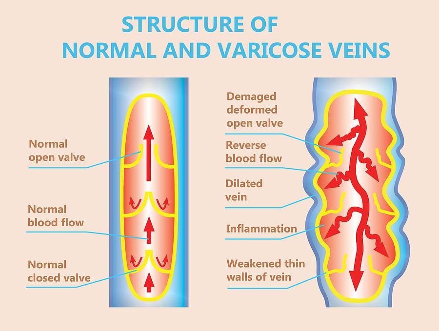 Venous reflux disease west florida vein center